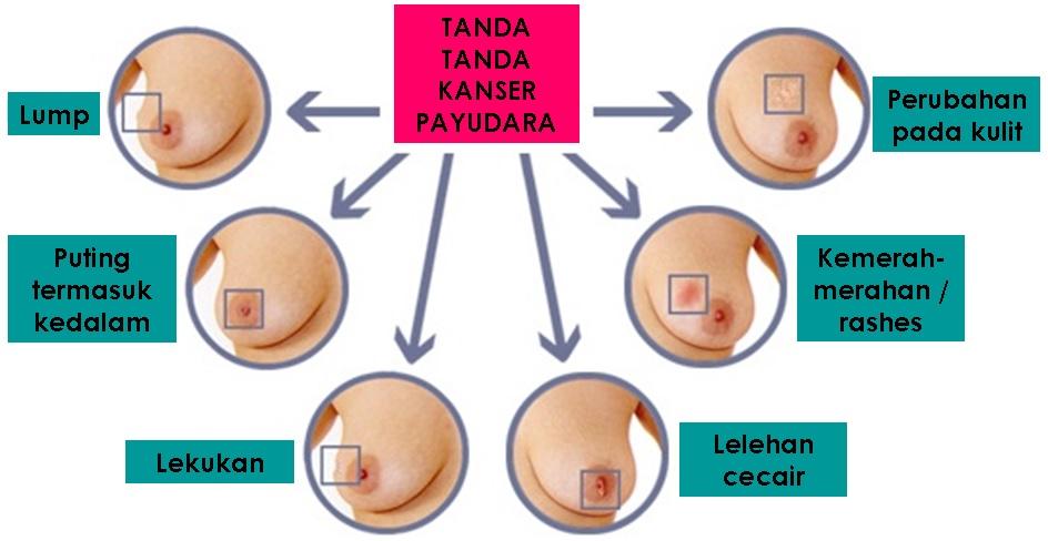 Image result for kanser payudara