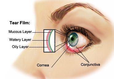 dry-eye-syndrome-11