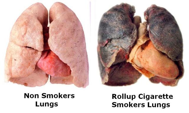 lungs-smoker-non-smoker
