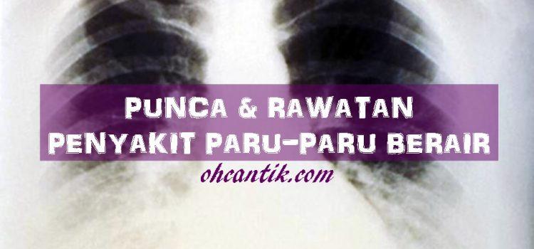 Punca Paru-paru Berair: Tanda-tanda & Rawatan Yang Ada