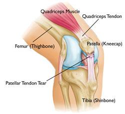 ubat sakit lutut