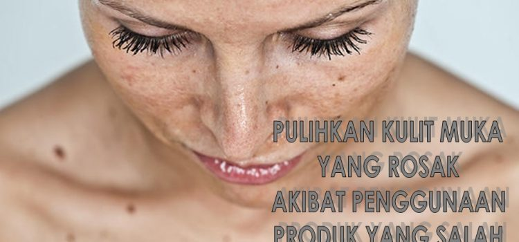 Pulihkan Kulit Muka Rosak Akibat 10 Kesalahan Yang Selalu Dilakukan Dalam Menjaga Kecantikan