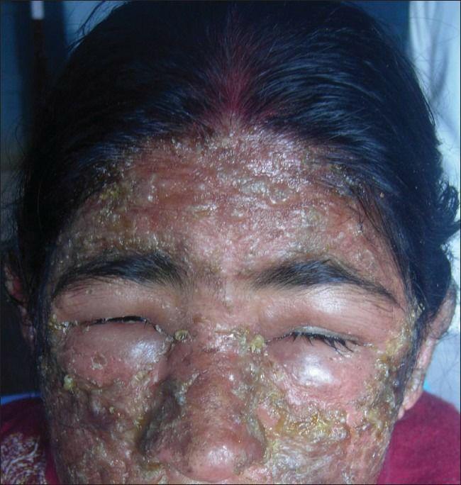 pulihkan-kulit muka rosak