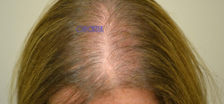 Rambut Gugur Lepas Bersalin: Puncanya & Cara Mendapatkan Kembali Rambut Yang Lebat