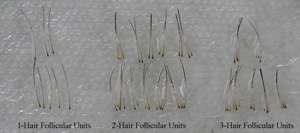 Follicular-Units-1024x456