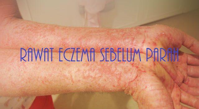 Cara Merawat Eczema Dan Mengawal Eczema Supaya Tidak Menjadi Semakin Parah