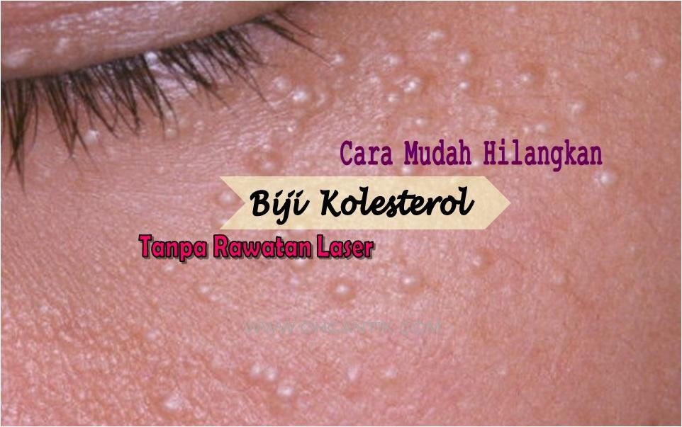 hilangkan biji kolesterol di muka