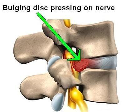 rawatan slip disc