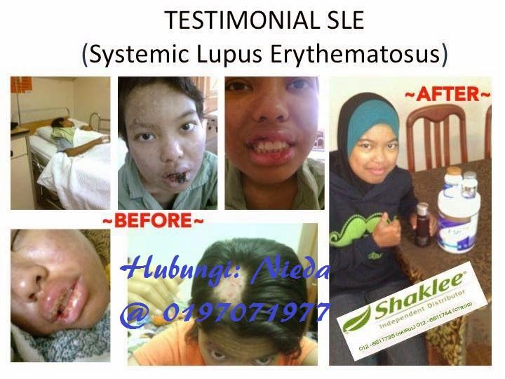 punca penyakit SLE