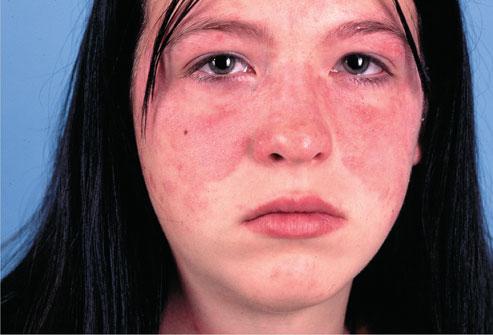 muka penghidap penyakit sle