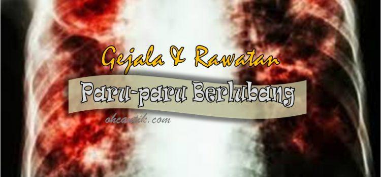 Paru paru Berlubang: Gejala & Rawatan