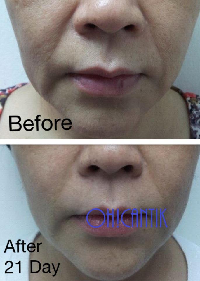 cara cepat tegangkan kulit muka