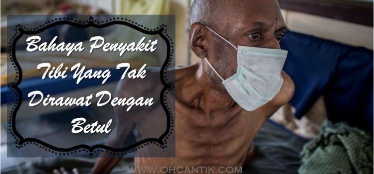 Bahaya Penyakit Tibi Yang Tak Dirawat