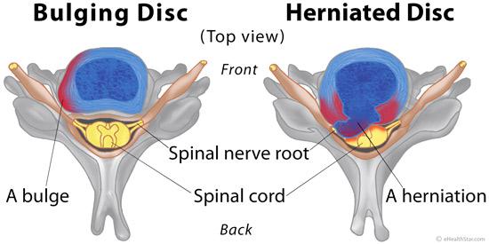 sakit slip disc