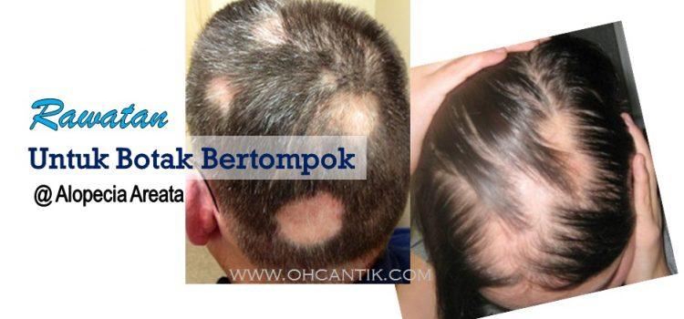 Ubat Rambut Botak Bertompok: Rawatan Konvensional