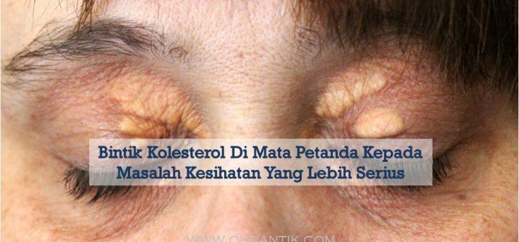 Bintik Kolesterol Di Mata Tanda Masalah Kesihatan
