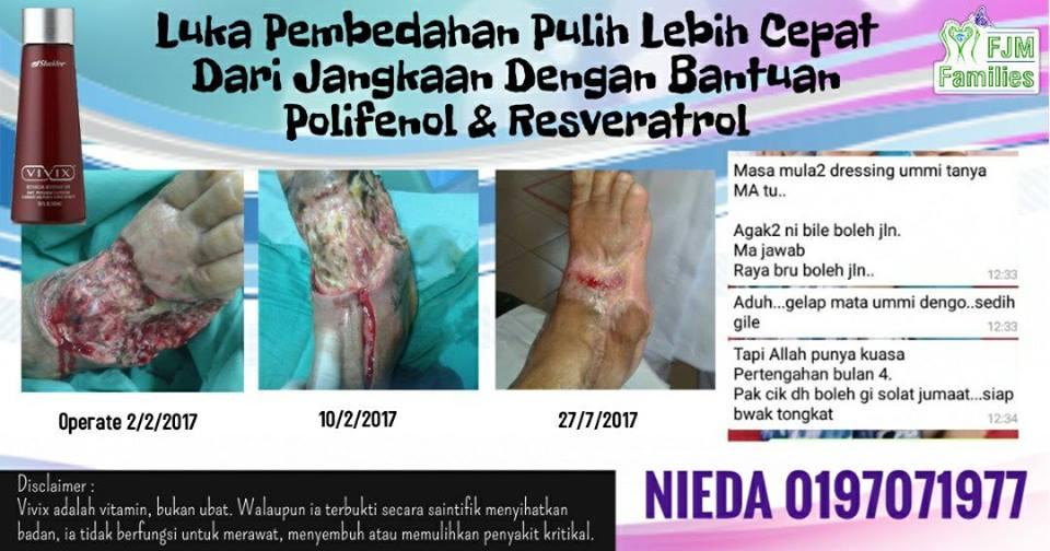 rawatan luka kencing manis