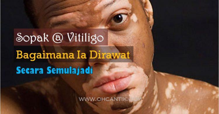 Rawatan Penyakit Sopak @ Vitiligo Tanpa Pembedahan Atau Suntikan