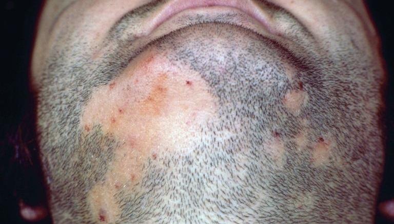 punca rawatan rambut gugur bertompok tak berhasil