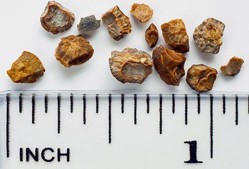 jenis penyakit batu karang